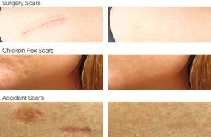 dermefface_fx_scars