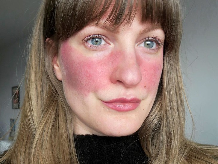 rosacea on a woman