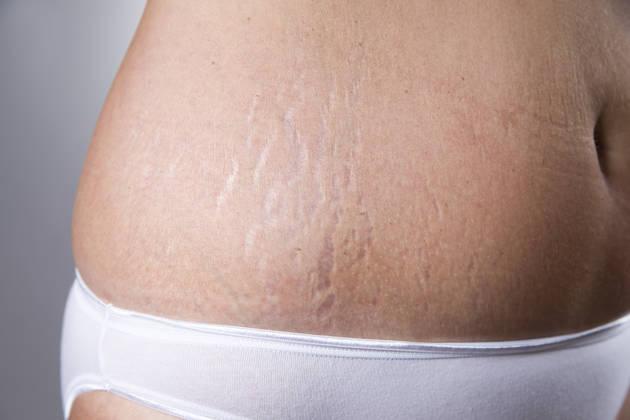 stretch marks on abdomen