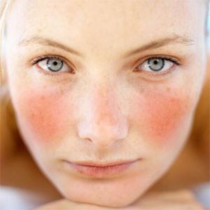 rosacea-symptoms