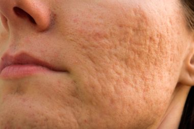 How To Significantly Reduce Acne Scarring
