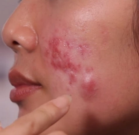 acne cysts on face
